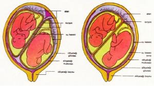 Solda: Yalancı ikizler ya da çift yumurta ikizleri; Sağda: Gerçek ikizler ya da tek yumurta ikizleri.