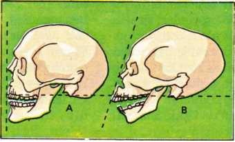 insan kafatası biçimleri