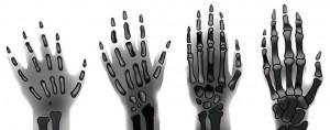 el kemikleri röntgen filmleri