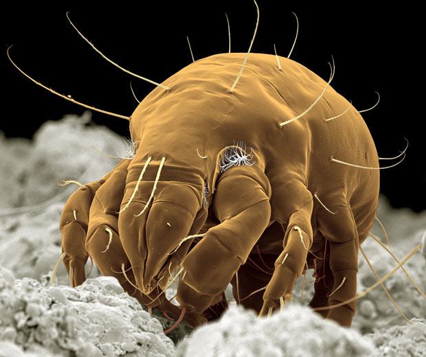 Picture This Photography And Graphics: Mikroskobik Canlıların Yaşamımıza Olumlu Ve Olumsuz